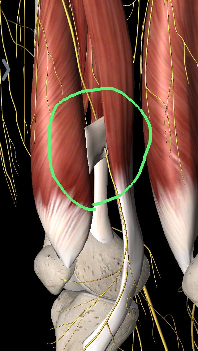 伏在神経絞扼障害について